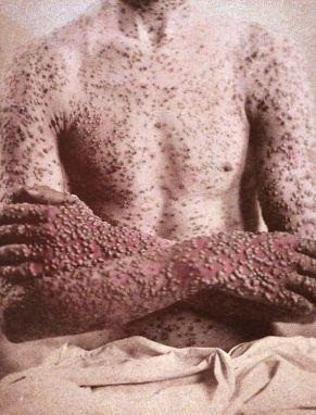 viruela - El sarampión y la viruela, pandemias de todos los tiempos
